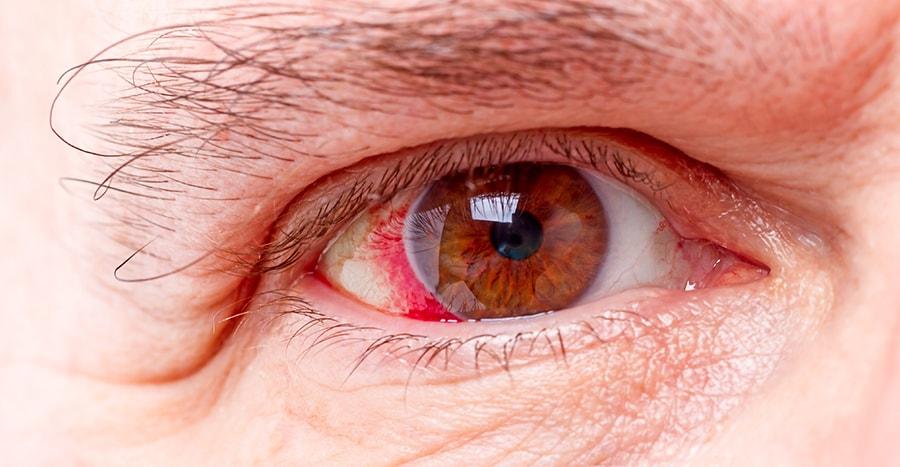 bilinmeyen göz hastalıkları neler? tehlikeli göz hastalıkları