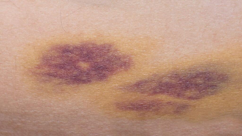 Ciltte morarma neden olur, Ezik ve morarma nasıl geçer, cilt neden morarır, cildi morartan şeyler nelerdir, cilt morarması hastalık belirtisi mi, ciltte morluk neden olur, cilt morarması hangi ilaçlarla geçer, cilt morarmasına sirke iyi gelir mi, cilt morarmasına yaban mersini iyi gelir mi, cildin ezikliği neden olur