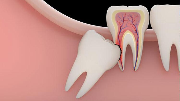 20 lik diş ameliyatı nasıl olur 20 lik diş ameliyatı ne kadar sürer
